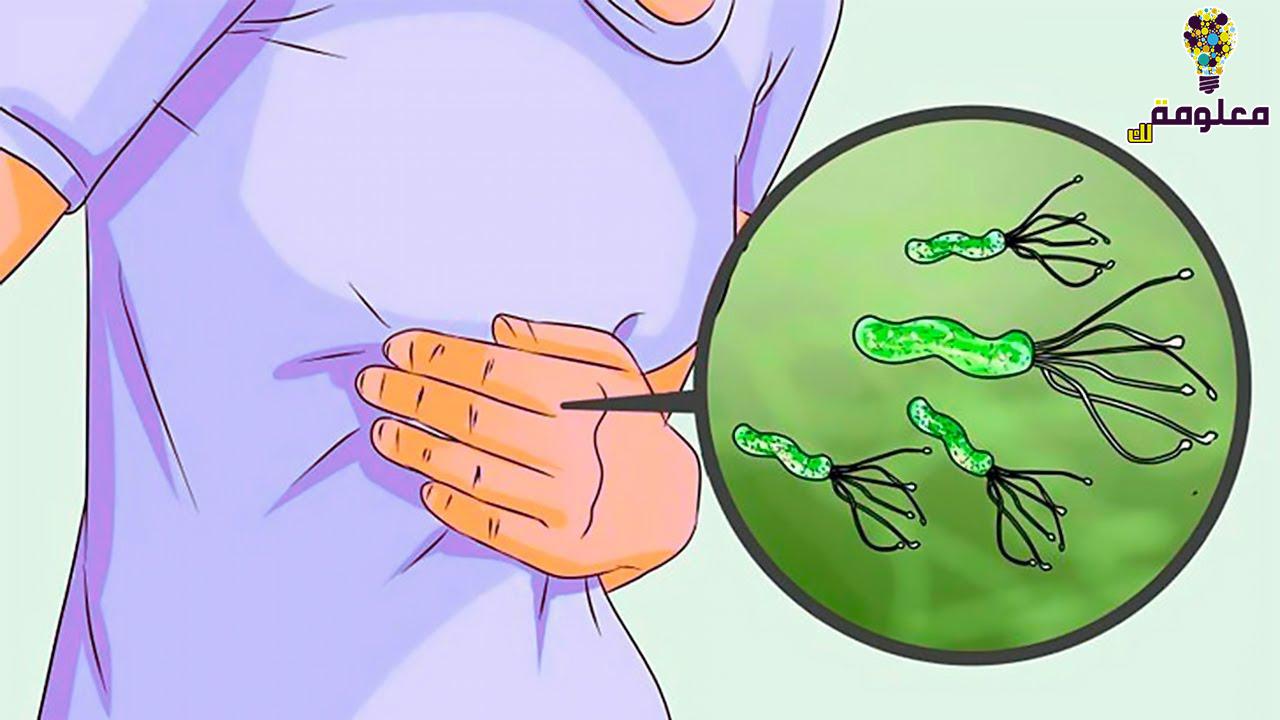 جرثومة المعدة Helicobacter pylori